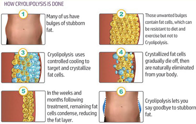 Cryo Lipolysis Diagram